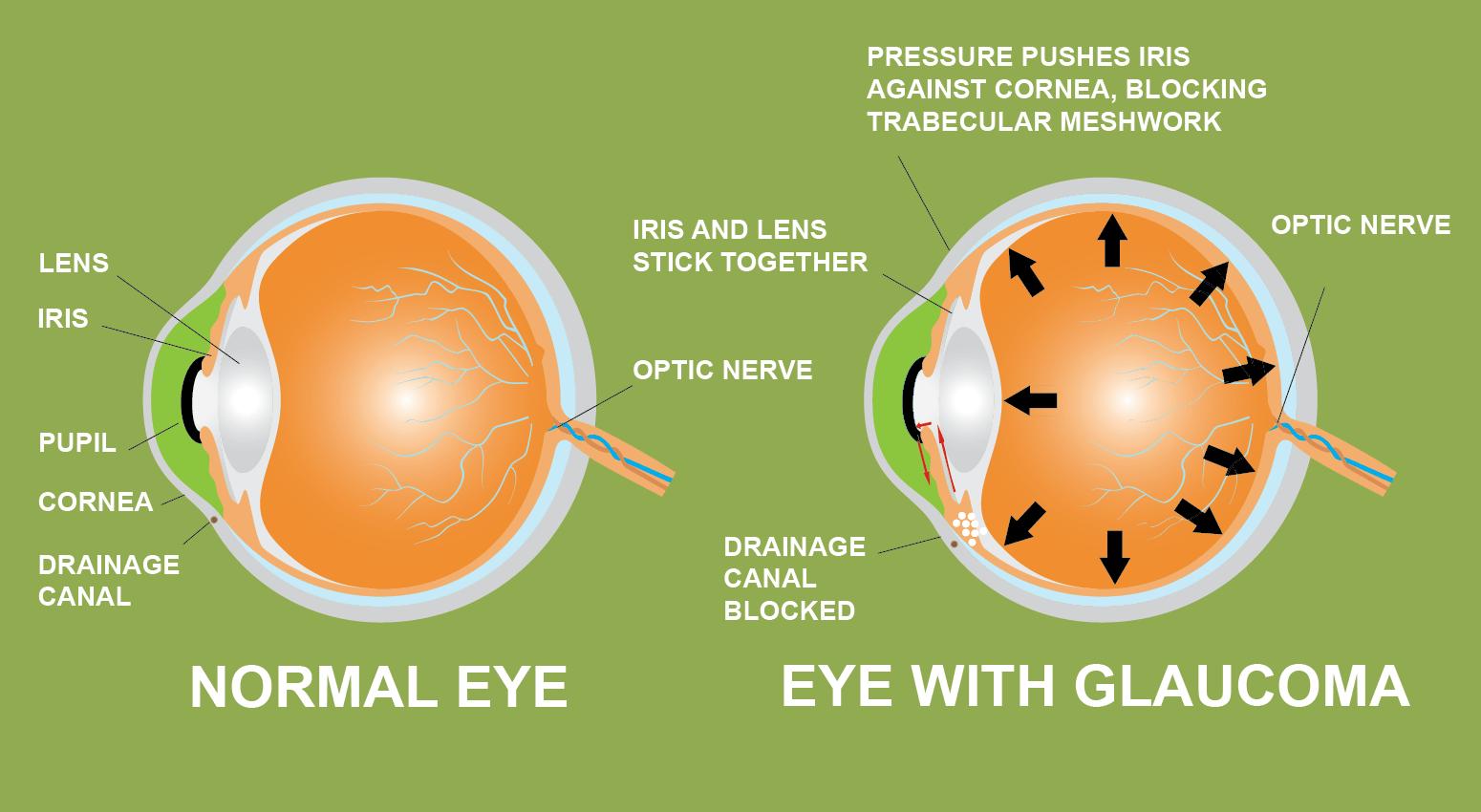 glaucoom iris lens pupil hoornvlies afwateringskanaal cannabis voorkomen