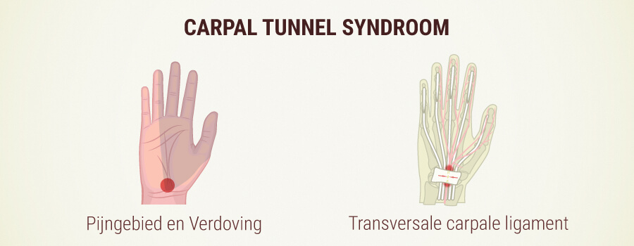 Carpaal Tunnel Syndroom