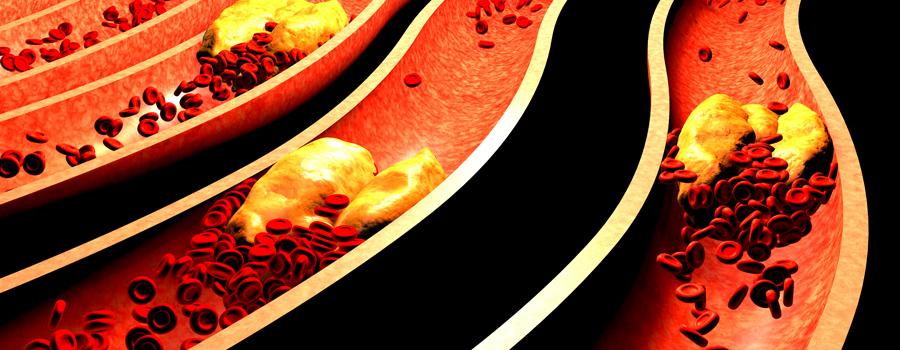Hartcellen bloeddruk