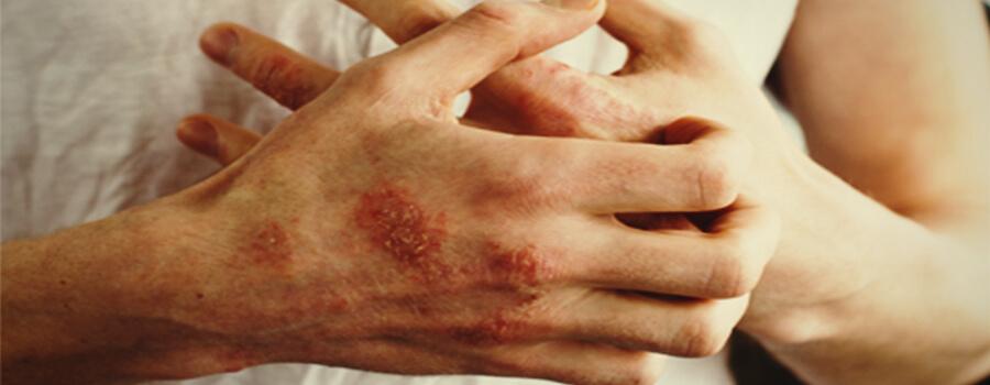 Eczeem en allergieën