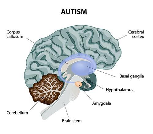 cannabis autisme