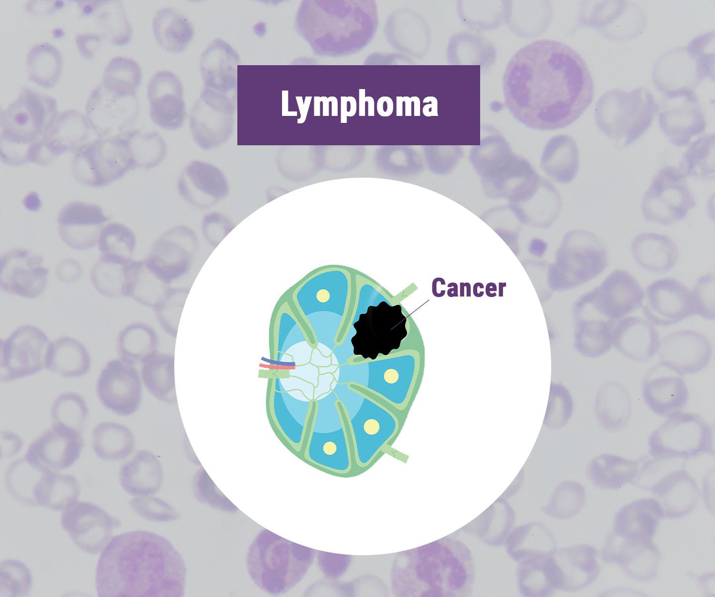 Lymfoom